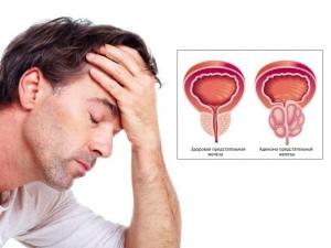 Лечение аденомы простаты в Астане
