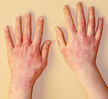 дерматит лечение в астане