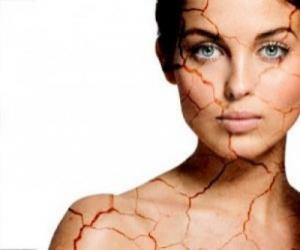 Псориаз – болезнь или образ жизни, который нужно менять