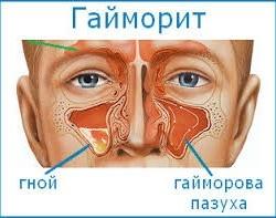 Консервативное лечение гайморита в Астане