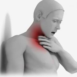 Лечение ларингита в Астане