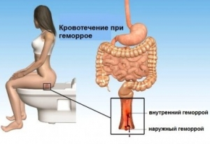 Геморрой после родов: не нужно бояться и стесняться — лечение без боли проводят проктологи-женщины