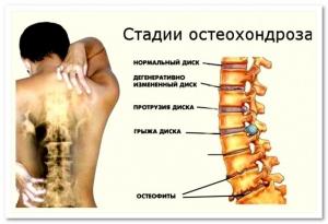Лечение остеохондроза в Он Клиник Астана
