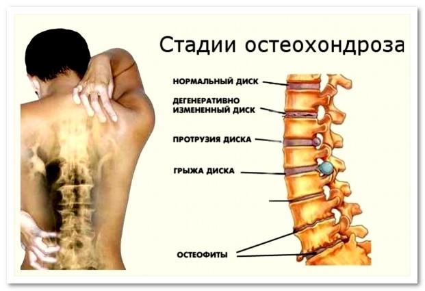 Лечение грыжи позвоночника в астане