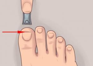 Удаление вросшего ногтя навсегда – пластика ногтевого валика